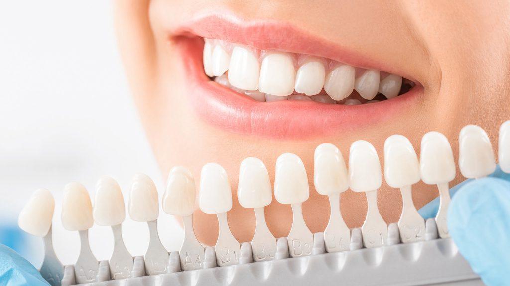 6 طرق بسيطة لتبييض الأسنان في المنزل