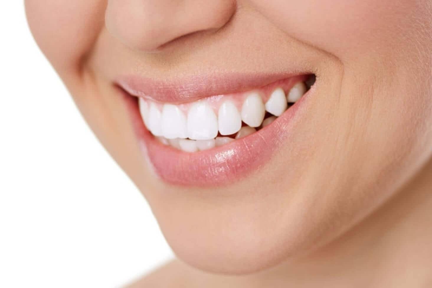طريقة مضمونة لتبييض الاسنان دون تكاليف باهظة أسنان كير كوم