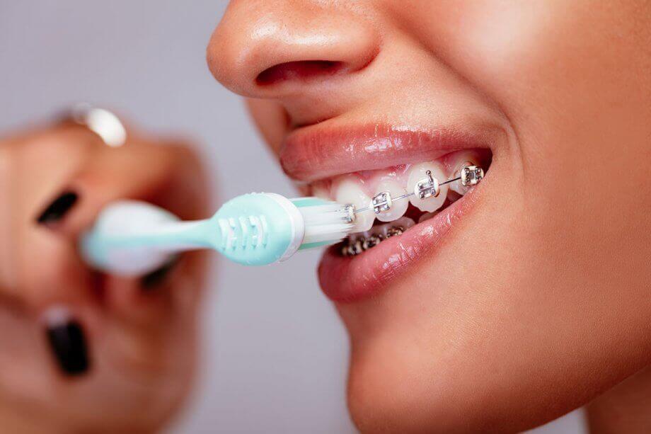 أنواع فرشاة تقويم الاسنان وفوائدها أسنان كير كوم